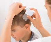 10 Tips to Prevent and Avoid Getting Head Lice