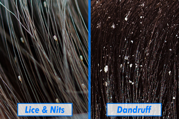 how to tell difference between lice and dandruff
